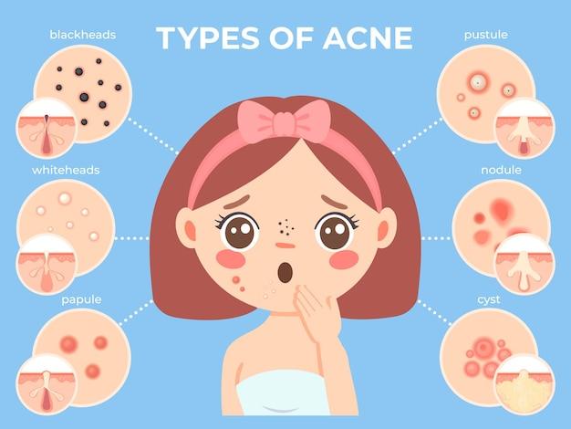 Menina com acne. rosto feminino jovem infeliz com problemas de pele e ícones de tipos de espinhas. infográfico de vetores de dermatologia e cosméticos para a pele com espinhas e cravos, pústulas e nódulos