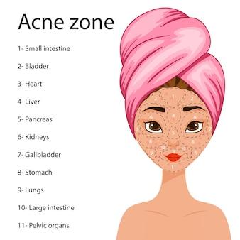 Menina com um esquema de áreas problemáticas no rosto com uma predisposição para acne. c