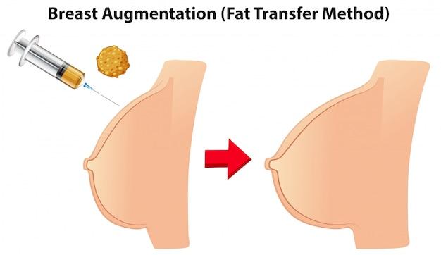 Método de transferência de gordura para aumento de mama