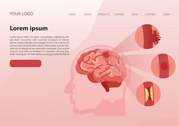 Modelo de banner da web. doença de acidente vascular cerebral.