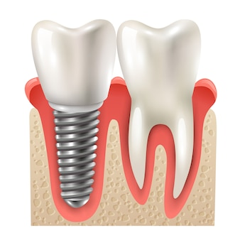 Modelo de closeup de conjunto de dente de implante dentário