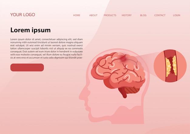 Modelo de design do banner da web.