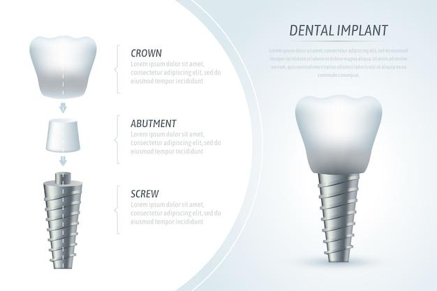Modelo de infográfico médico e implante dentário