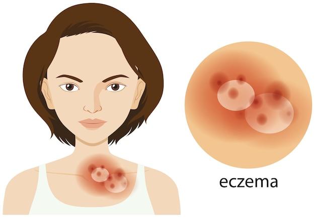 Mulher e problema de eczema