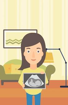 Mulher grávida com imagem de ultra-som.