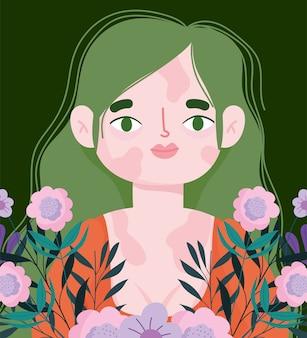 Mulher jovem perfeitamente imperfeita com vitiligo no rosto e no corpo, decoração floral com flores