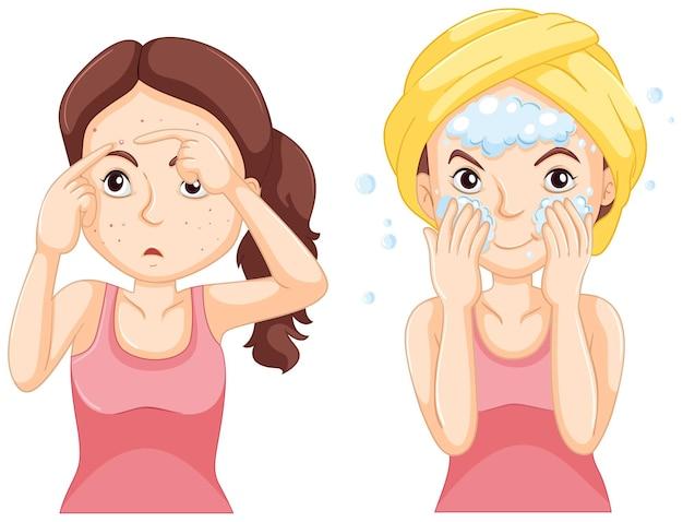 Mulher lavando o rosto e mulher com espinhas