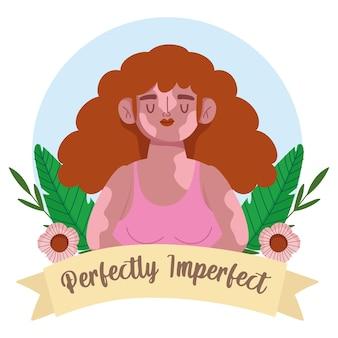Mulher perfeitamente imperfeita com retrato de desenho animado com vitiligo, ilustração de decoração de flores