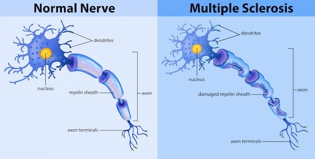 Nervo normal e esclerose múltipla