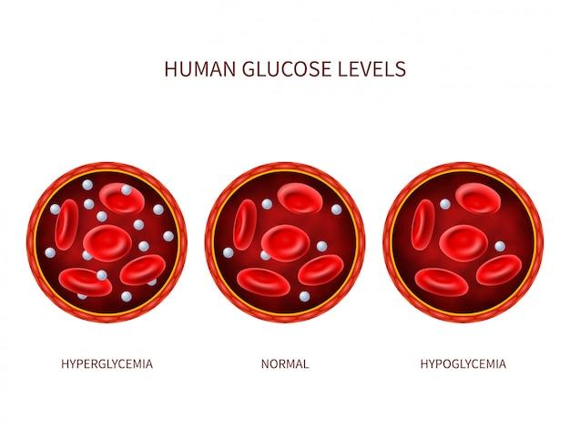 Níveis de glicose humanos hiperglicemia, normal, hipoglicemia