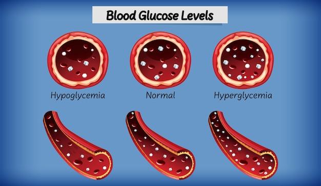 Nível de glicose no sangue médico