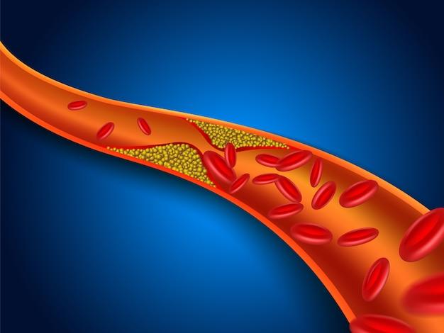 O colesterol está entupido nos vasos sanguíneos.