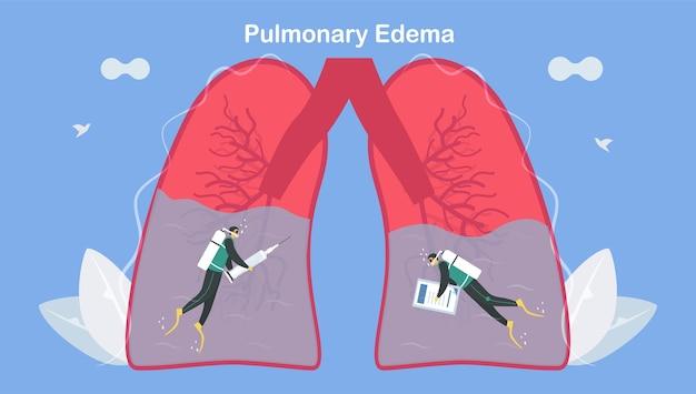 O edema pulmonar é um sintoma de que os pulmões se enchem de líquido. tratamento e diagnóstico. o corpo luta para obter oxigênio suficiente até falta de ar.