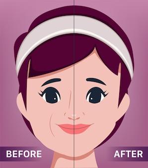 O rosto feminino jovem levantando e antienvelhecimento o retrato de uma clínica de cirurgia de mulher bonita