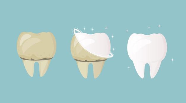 Os dentes são amarelos antes do tratamento e limpeza e depois de brancos e saudáveis