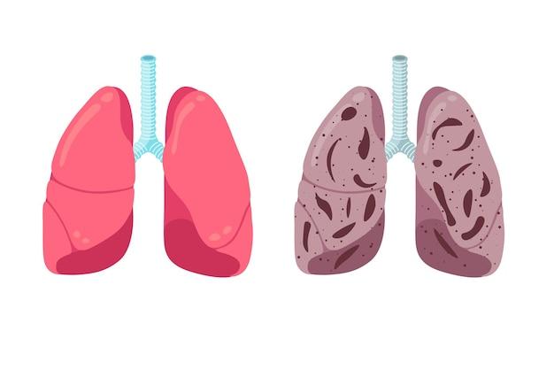 Os pulmões saudáveis e os doentios comparam o conceito do sistema respiratório humano ao órgão interno forte e