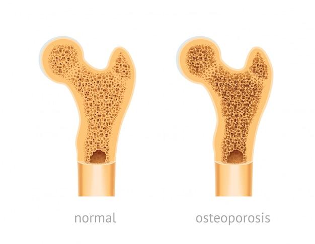 Osso humano saudável e com osteoporose