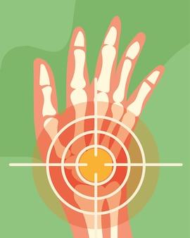 Ossos de mão de reumatologia