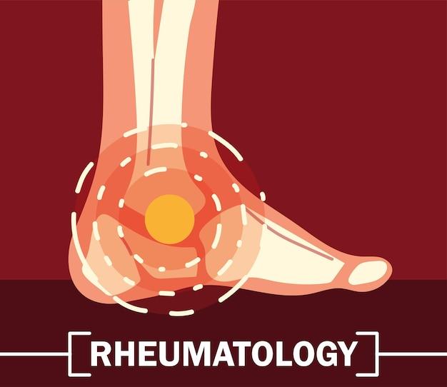 Ossos do tornozelo de reumatologia com dor