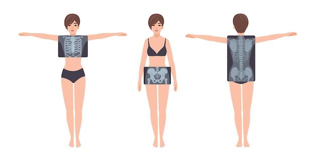 Paciente do sexo feminino e sua radiografia da caixa torácica, pelve e coluna vertebral isolada no fundo branco. mulher jovem e fotos de raio-x de seu sistema esquelético no monitor. ilustração em vetor colorido plana dos desenhos animados.