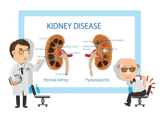 Pacientes e médicos visualizando diagramas pielonefrite