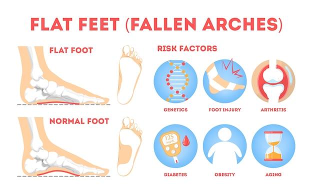 Patologias nos pés, pôster informativo. anatomia do pé plano. deformado