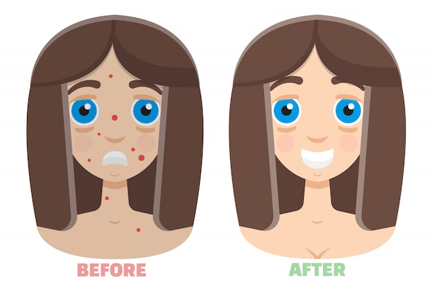 Peeling a laser antes e depois
