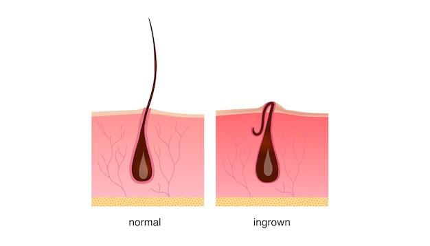 Pêlos encravados após barbear, creme ou depilador.