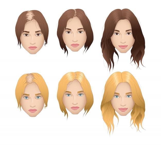 Perda de cabelo mulher