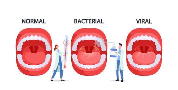 Personagens médicos com termômetro e spray para garganta apresentando infecção por faringite normal, bacteriana e viral