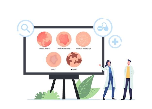 Personagens minúsculos de médicos apresentando infográficos de doenças de pele herpes zoster, dermatofitose, pitiríase versicolor, hematoma e vitiligo. utricaria rash symptom. ilustração em vetor desenho animado
