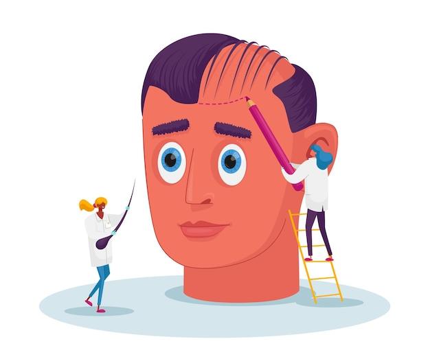 Personagens minúsculos de médicos preparam enorme cabeça masculina para procedimento de transplante de cabelo, pintura de linhas de marcação para cirurgia plástica, perda de cabelo e retrocesso de problema de saúde