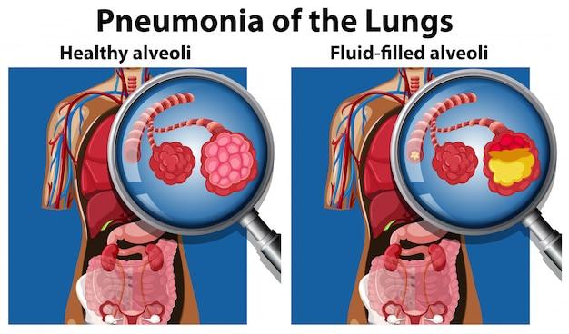Pneumonia do conceito de pulmões