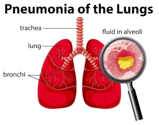 Pneumonia do diagrama pulmonar