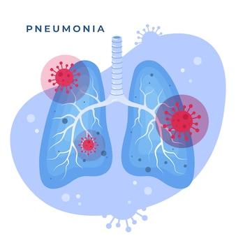 Pneumonia por coronavírus e pulmões ilustrados