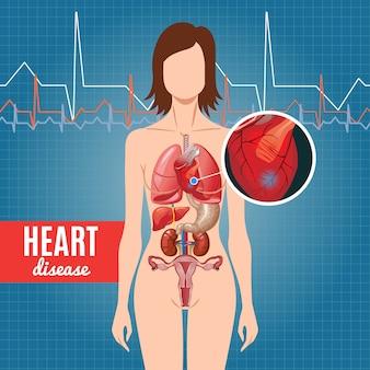 Pôster de desenho animado sobre doença cardíaca