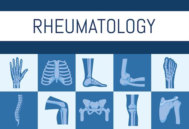 Pôster de ossos de reumatologia