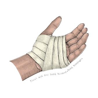 Primeiros socorros para mão quebrada. bandagem de mão. estilo vintage de ilustração de mão