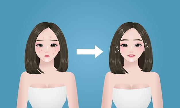 Problema de acne, as mulheres enfrentam o antes e depois do conceito