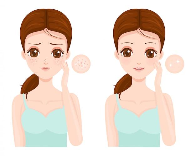 Problemas de pele facial com poros dilatados
