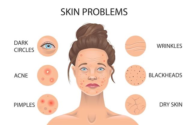 Problemas de pele. ilustração vetorial.