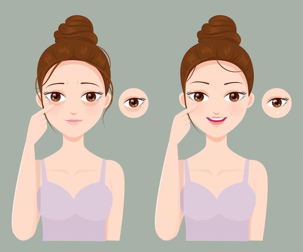 Problemas de rugas e olho roxo