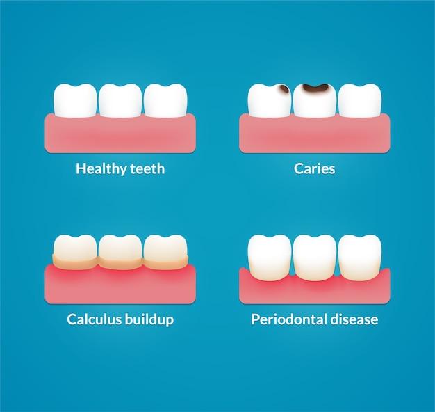 Problemas dentários comuns: cárie, placa bacteriana e doença gengival, com dentes saudáveis para comparação. gráfico infográfico médico moderno.