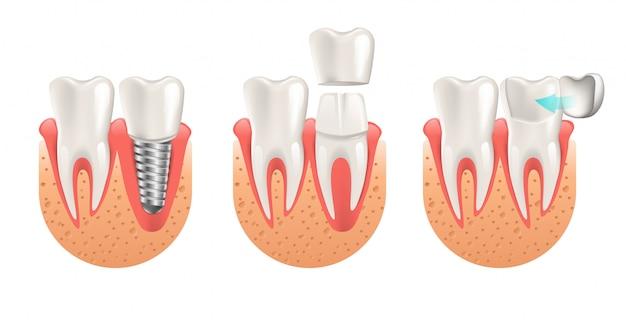 Procedimento de dentes de restauração de coroa de folheado de implante