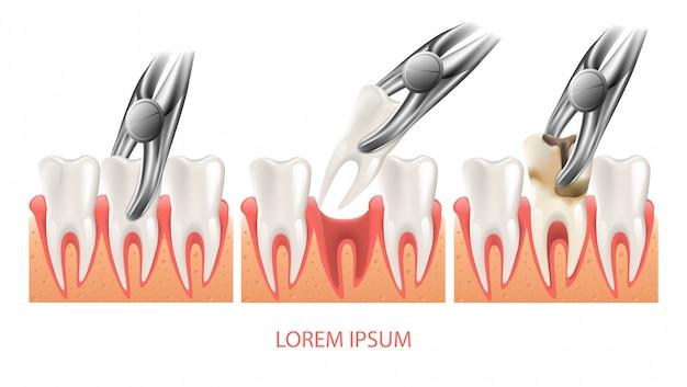 Procedimento de extração de dente decadente