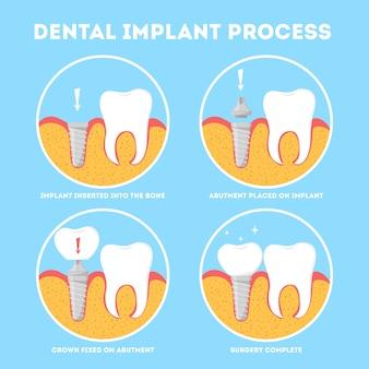 Processo de implante dentário. tratamento médico e odontológico.