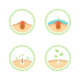 Processo de limpeza de poros de acne ou preto