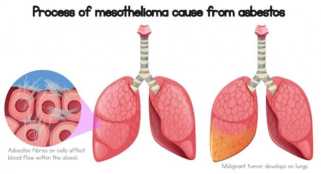Processo de mesotelioma causa de amianto