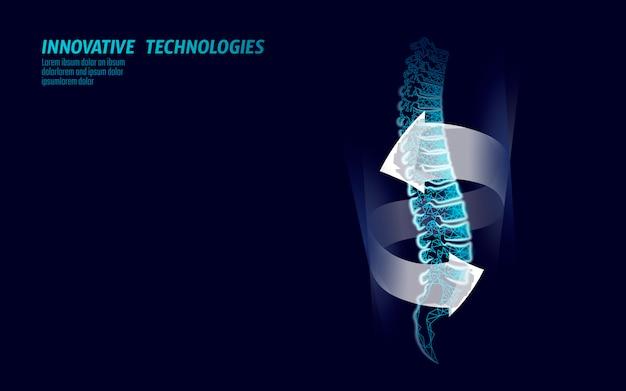Proteção da fisioterapia para lesões na coluna vertebral humana.