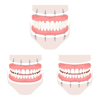 Prótese removível da mandíbula superior e inferior.